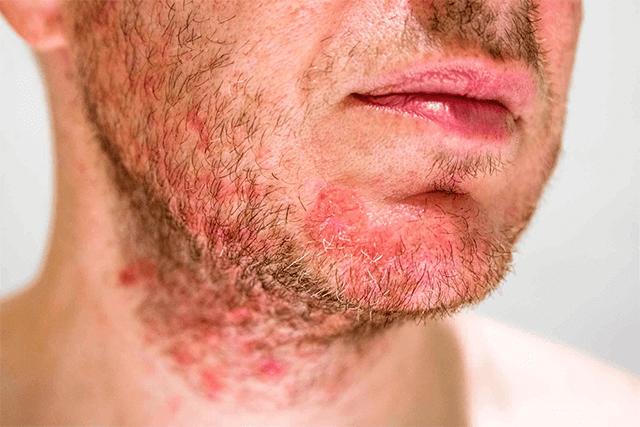 skin diseases in summer season
